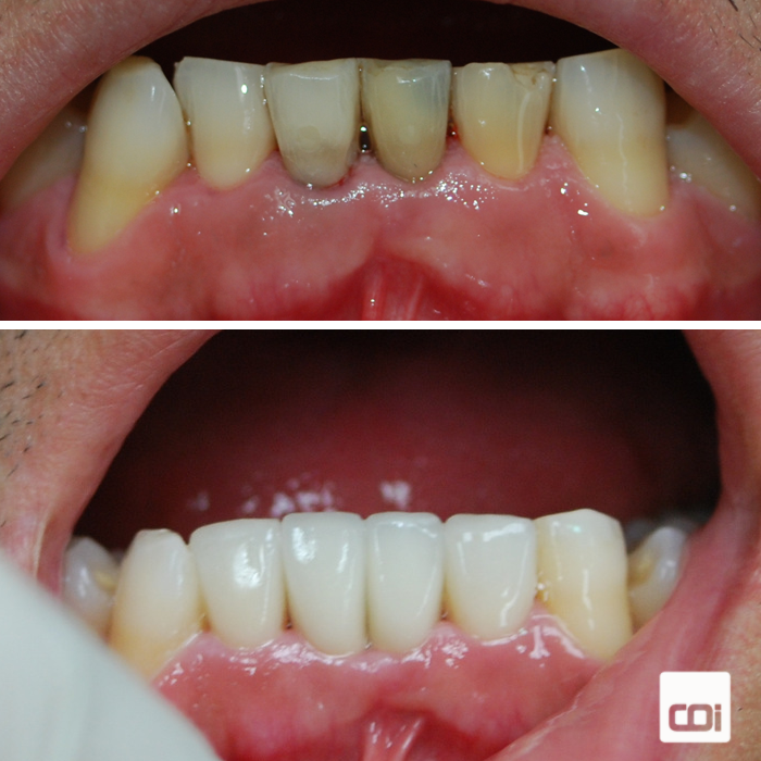 caso de implantes dentales y carillas