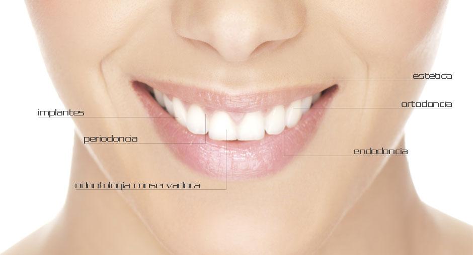 dentistas Gijón