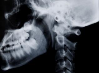 radiología clinica dental gijon