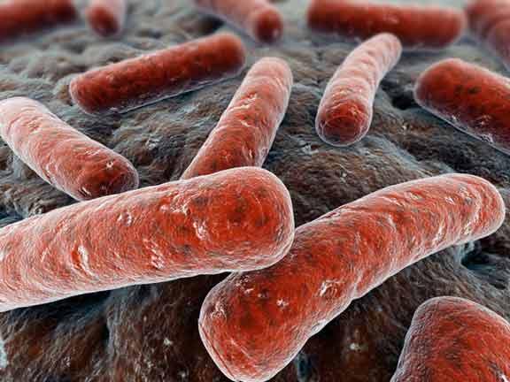 bacterias enfermedad periodontal