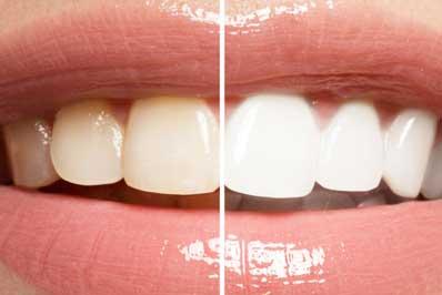 blanqueamiento dental gijon asturias