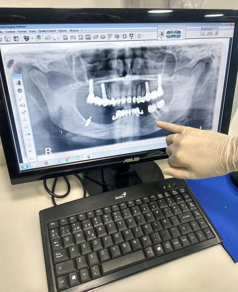diagnostico digital clinica dental gijon