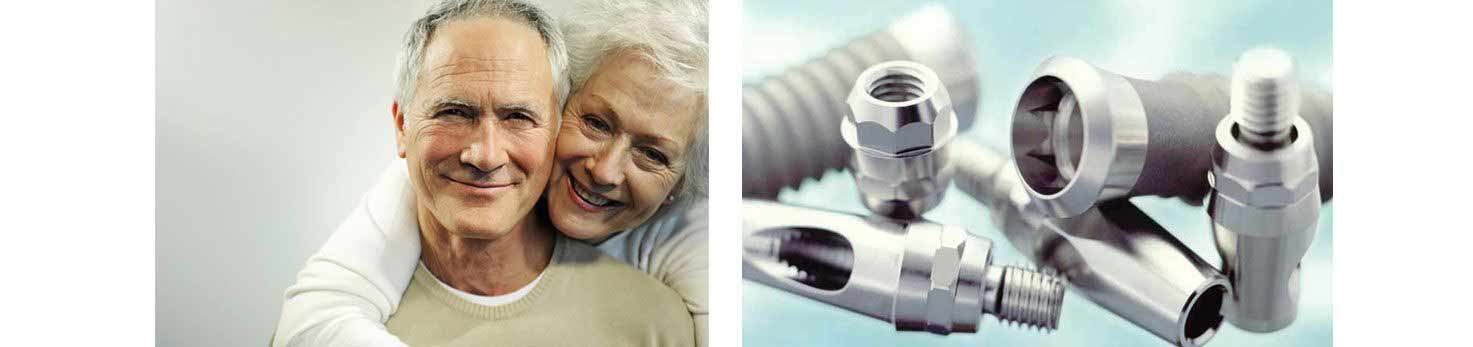 implantes dentales gijon clinica dental