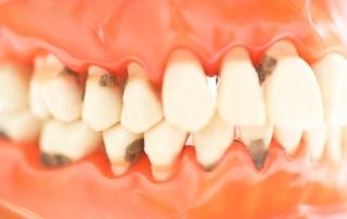 periodoncia gijon