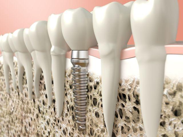 regeneración ósea implantes dentales Asturias