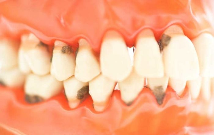 ¿Cómo prevenir las enfermedades de las encías?