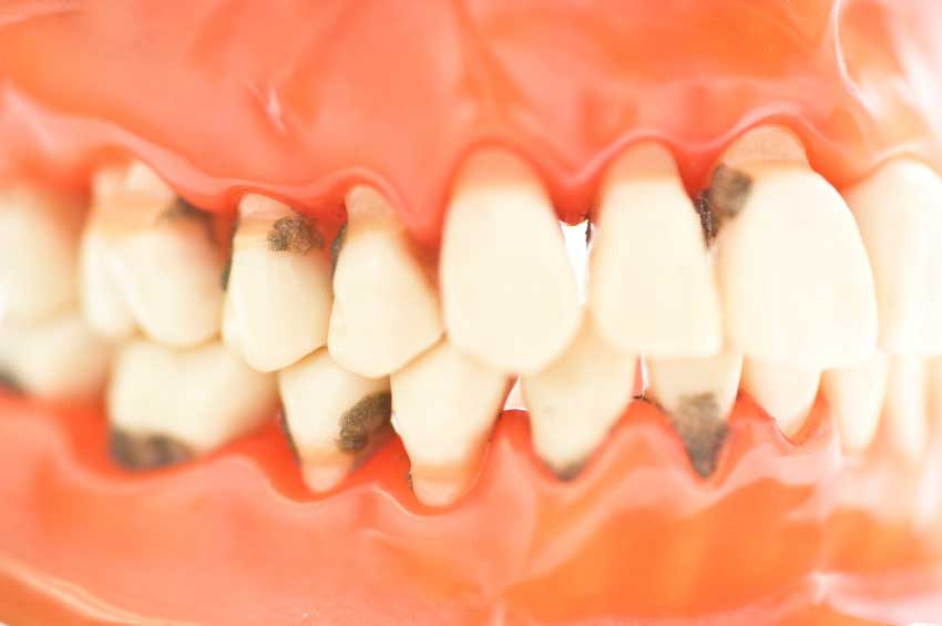 Tratamiento periodoncia Gijón