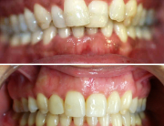 caso de ortodoncia