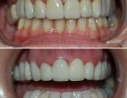 caso de estética dental