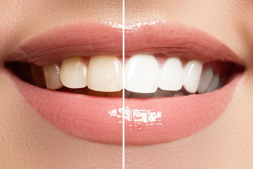 Blanqueamiento dental Gijón