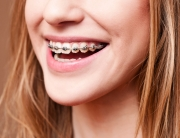 clinica ortodoncia gijon dr arias