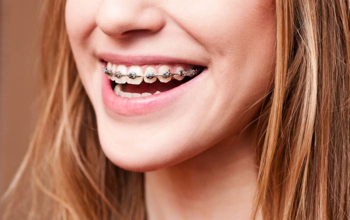 ¿Para qué sirve la ortodoncia?