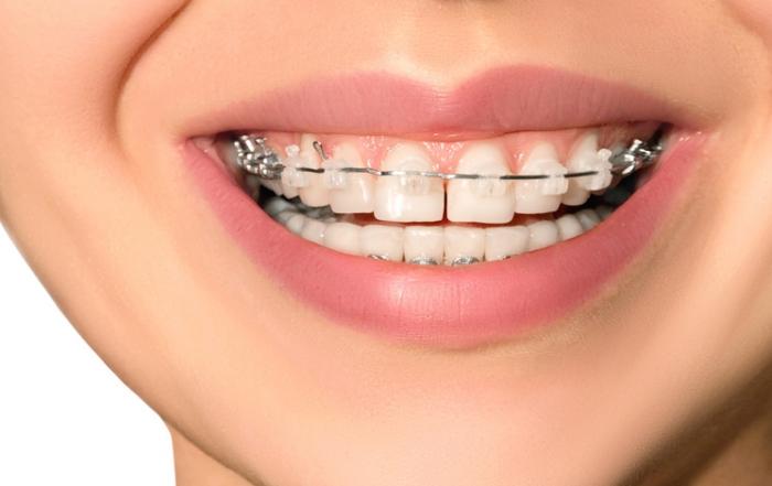 6 trucos para limpiar los dientes con ortodoncia