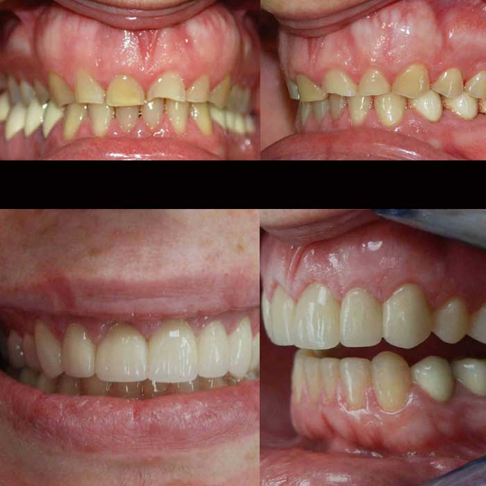 bruxismo desgaste dental y reconstruccion clinica odontologica integral Dr. Arias Gijón