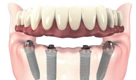 implantes dentales all on four gijon