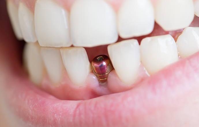 Los riesgos de un implante dental mal realizado
