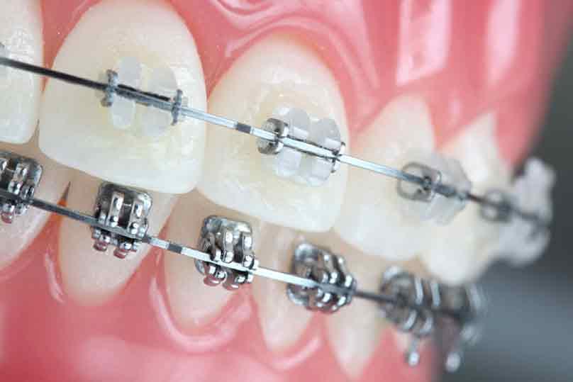 ortodoncia con brakets y ortodoncia transparente en Gijón