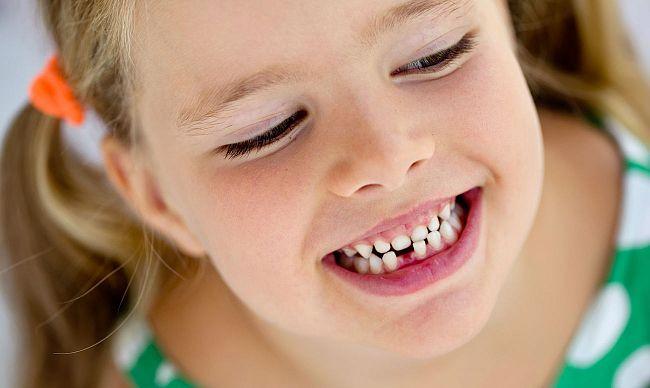 dientes edad infantil