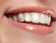 carillas dentales Gijón