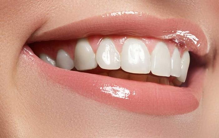 ¿Cuándo usar carillas dentales?