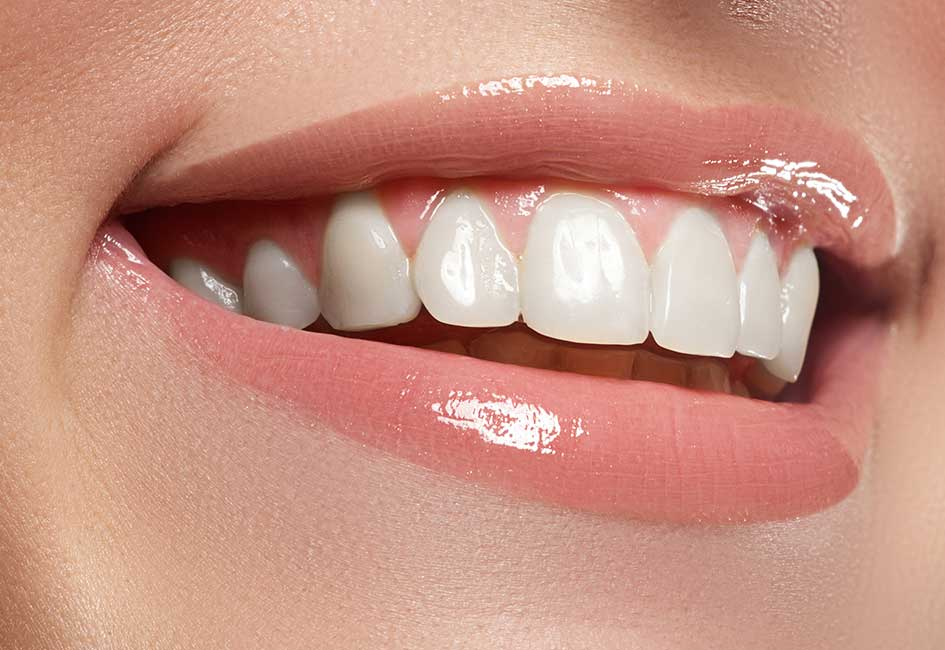 carillas dentales en Gijón Asturias