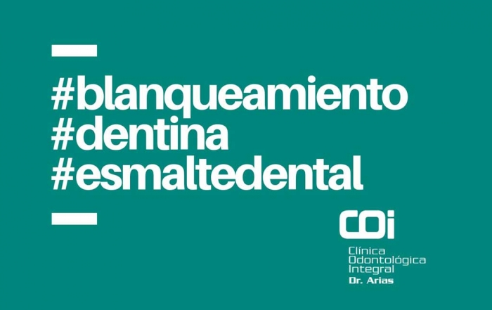 ¿Cuánto dura un blanqueamiento dental?